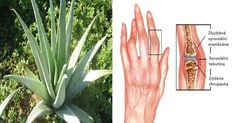 Arthritis Remedies Hands Natural Cures - Arthritis is inflammation and stiffness of the joints. It is a very painful… - Arthritis Remedies Hands Natural Cures What Causes Arthritis, Arthritis Hands, Prevent Arthritis, Natural Remedies For Arthritis, Rheumatoid Arthritis Treatment, Types Of Arthritis, Natural Herbs, Natural Oils, Natural Health