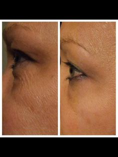 Take the 30 day Nerium Challenge and see what it will do for your skin.  Results are guaranteed or your money back!. www.lisacraig.theneriumlook.com