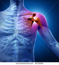 Arthritis Stock Photos, Images, & Pictures | Shutterstock