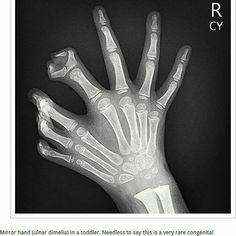 'Mirror hand'. #radiology #signs 'Mano en espejo.  #radiografía #radiography #radiographer
