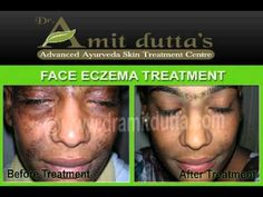 Eczema , Atpoic Eczema, Contact Dermatitis , Allergy - Skin Diseases Ayurvedic Treatment -  CLICK HERE for the Eczema Cure! #eczema #eczemacure #eczemadiet  Welcome to Dr. Amit Dutta's  :: AYUR – SUDHA ::: Advanced Ayurveda Skin Treatment Centre, a new kind of SKIN  CARE organization. This site has information on Ayurveda and skin diseases, which is very good for your health and... - #Eczema