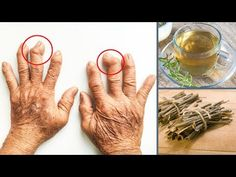 Homemade Remedies for Arthritis and Joint Pain - Everyday Remedy