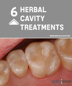 6 Herbal Cavity Treatments