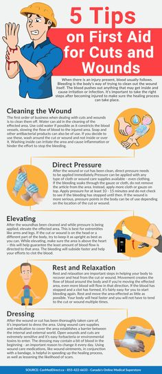 How to Treat Cuts and Wounds Infographic. Clean the wound, apply direct pressure, elevate the wound, avoid movement and dress the area. To dress the area we recommend the use of sterile gauze, you can learn more about this first aid item in our article here: http://insidefirstaid.com/personal/first-aid-kit/sterile-gauze-an-effective-tool-to-stop-bleeding-and-prevent-infection #wounds #cuts #home #health