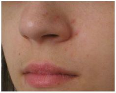 Figure 4 Acne excoriata (self-induced lesions on the face using a magnifying mirror).