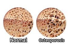 Como ya se sabe, la osteoporosis es provocada por una deficiencia de calcio , motivo por el cual los huesos se vuelvan muy débiles oca...