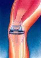 How to Survive a Total Knee Replacement thumbnail