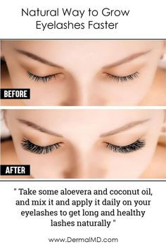 Dermalmd Natural Way to Grow Eyelashes Faster How To Grow Eyelashes, Eyelash Growth Serum, Natural Eyelashes, Rosacea, Chemist, Fragrance, How To Apply, Perfume