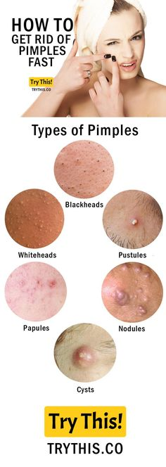 How to Get Rid of Pimples Fast - Types of Pimples