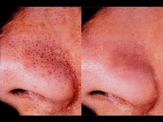 5 Ways to Get Rid of Blackheads - wikiHow