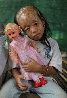 essere donne, bambine, ragazze... può esporre a delle violenze assurde... http://rebeccaarcobaleno.blogspot.it/2015/09/il-volto-delle-donne-di-rebecca.html