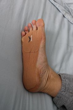 KT Tape for Morton's Neuroma