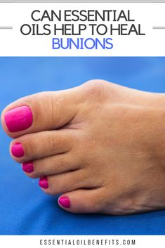 Find out the causes and symptoms of bunions and how to treat bunions with the best 9 essential oils, 5 essential oil recipes and home remedies. Citrus Essential Oil, Chamomile Essential Oil, Essential Oil Uses, Doterra Essential Oils, Young Living Oils, Young Living Essential Oils, How To Treat Bunions, Bunion Remedies, Foot Remedies