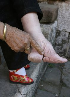 Chinese foot binding - the toes were broken and folded under the foot. It never fails to amaze me, how cruel people can be!