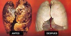 Como purificar los pulmones en 72 horas