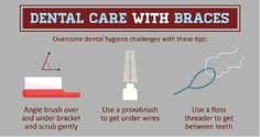 Dental care tips when living with dental braces