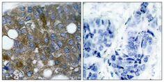 HSP27 Antibody (pSer15) - Rabbit Polyclonal antibody to HSP27 (pSer15). Species Reactivity: Hu, Ms, Rt. Applications: WB, IHC, ICC/IF.