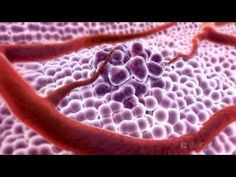 Medical Animation Video What Is Cancer? Human Body Activities, Endometrial Cancer, Biology Lessons, Thyroid Cancer, Medical Science, Medical Information, Anatomy And Physiology, Cancer Treatment, Life Science
