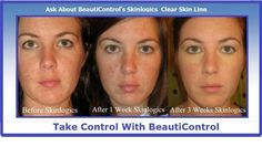 Beauti Control's skin care products are phenomenal! Amazing transformations in a short time!  If you or someone you lloves suffers from acne what a awesome Christmas gift, the gift of beautiful skin check out my website http://www.beautipage.com/debbiemiddendorf