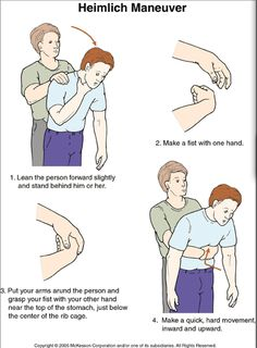 Heimlich maneuver - for adults, children, infants, pregnant women, yourself & your pets | GODYEARS