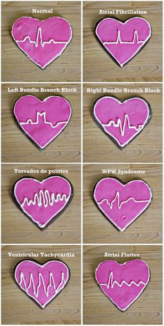 ECG Cookies - fulfilling your sweet tooth and helping you study, all at once!