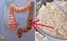 Il antico medico greco antico ha detto che 'la morte comincia nel colon'. Oggi la scienza moderna ha dimostrato che aveva ragione. Più di 50 milioni di persone negli Stati Uniti hanno problemi intestinali legati alla salute del colon. Mentre alcuni dei disturbi di salute sono minori come mal di testa, sonnolenza, e l'acne, molti altri sono malattie molto gravi. Loro includono: - Sindrome dell'intestino irritabile - Morbo di Crohn - Stipsi - Colite - Reflusso acido 100.000 persone all'anno…