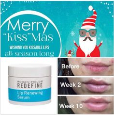 My Favorite smooching lip shield. Keep your lips protected and oh so kissably soft with Rodan + Fields Lip Renewing Serum. And notice fuller and defined lips as well! Contact me to order :) anichia38@gmail.com