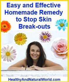 Homemade remedy to stop skin breakouts