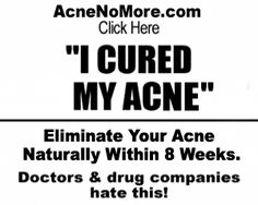 Gotta be the best solution to acne out there. #acne