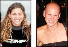 Ali before and after she lost her hair to alopecia. Here's her story in photos: http://www.everydayhealth.com/columns/ali-lambert-voron-no-colon-no-worries/alopecia-ulcerative-colitis-psoriasis/