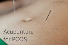 Find out if acupuncture is helpful for treating PCOS. See www.pcosdietsuppo... for more.