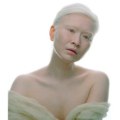 black albino humans - Google Search