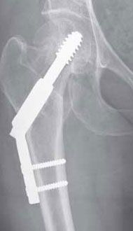 Neck of Femur Fracture dynamic hip screw