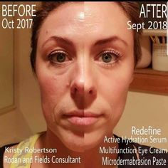 Kristy has been using Active Hydration Serum to boost the results of her Redefine regimen. Paired with Micro-Dermabrasion Paste to smooth her texture and Multi-Function Eyecream (because who doesn't need Eyecream? Look at her glow! Redefine Regimen, Skin Care Regimen, Multifunction Eye Cream, Rodan And Fields Business, Rodan And Fields Consultant, Independent Consultant, Younger Looking Skin, Skin Firming, Good Skin