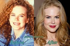 Nicole Kidman Bad and Good Plastic Surgery Before and After Pictures ☺ ☂. ☻  ☻