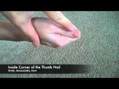 Puntos de acupuntura en la manoAcupuntura