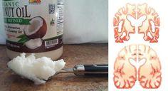 Aceite de coco para el Alzheimer