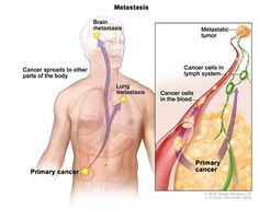 Metastasis; drawing shows primary cancer that has spread from the colon to other parts of the body (the lung and the brain). An inset shows cancer cells spreading from the primary cancer, through the blood and lymph system, to another part of the body where a metastatic tumor has formed.