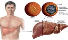 Hepatitis B is caused by an infectious DNA virus namely Hepatitis B virus which is different from Hepatitis A and C viruses. Hepatitis B virus affects the liver and creates acute (self-limiting) an… Hepatitis B, Health Fitness, Professor, Health And Wellness, Health And Fitness
