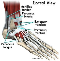Physiotherapy in Victoria, Westshore, Langford, for Ankle Fusion