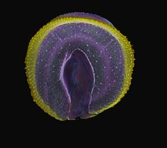 Corona by galfaye, digital colorization of an electron microscopic image of a Dinoflagellate