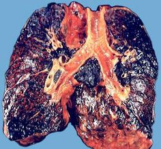 Elektronik Sigara Bilgi ve Orjinal Elektronik Sigara Satış Sitesi: Sigara içmenin zararları