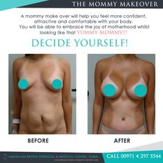 Look at those #results! Mother's day Mommy Makeover! A mommy #makeover is a combination of #cosmetic procedures designed to reverse body changes made during #pregnancy or from aging including #weight gain, stretch marks, loss of #muscle tone or sagging #breasts. A mommy make over will help you feel more #confident, #attractive and #comfortable with your body. #Dubai #dubaitag #mydubai #plasticsurgery #aesthetic #facelift #boobjob #rhinoplasty #fitnessjourney #amazing #beautiful #flawless