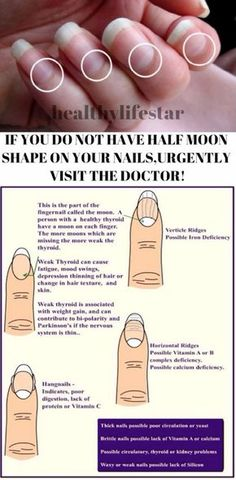 IF YOU DO NOT HAVE HALF MOON SHAPE ON YOUR NAILS,URGENTLY VISIT THE DOCTOR! – Toned