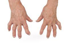 5 Juice Recipes to Ease Rheumatoid Arthritis Pain