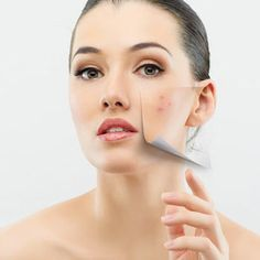 17 Homemade Remedies For Pimples/Acne-where was this when I was a walking middle school pizza!?
