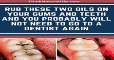 RUB THESE TWO OILS ON YOUR GUMS AND TEETH AND YOU PROBABLY WILL NOT NEED TO GO TO A DENTIST AGAIN - Healthy Teeth, Mouthwash, Skin Treatments, Natural Healing, Health And Beauty, Natural Remedies, Health Tips, Dental, Fun Facts