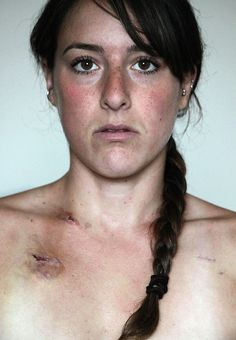 Photo Series: The Effects of Lyme Disease