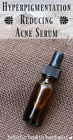 Reducing Acne Serum Hyperpigmentation Reducing Acne Serum - Reduce dark spots naturally using essential oils.Hyperpigmentation Reducing Acne Serum - Reduce dark spots naturally using essential oils. Back Acne Treatment, Natural Acne Treatment, Natural Acne Remedies, Home Remedies For Acne, Skin Care Remedies, Natural Skin Care, Natural Face, Natural Beauty, Acne Treatments