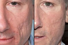 the secrets of amazing natural scar removal when talking about scar